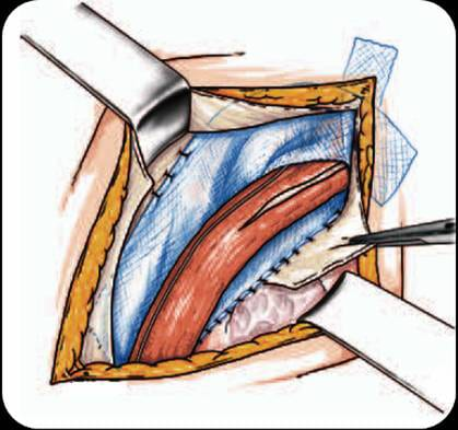 Hernia epigastrica de linie alba pret operatie