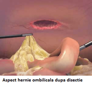 Aspect hernie ombilicala dupa disectie