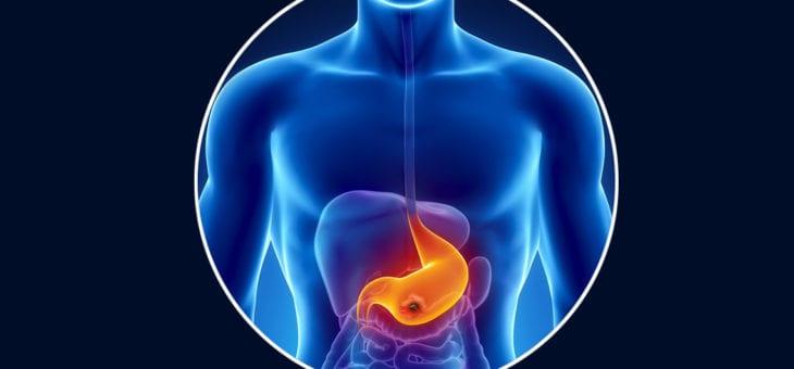 Ulcer perforat – Perforatia in ulcerul gastroduodenal