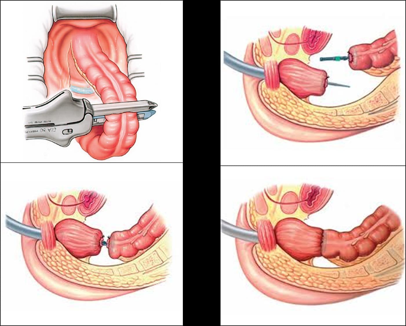 recidiva cancer colon