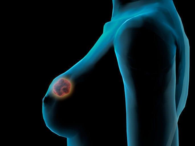 Fibroadenom mamar