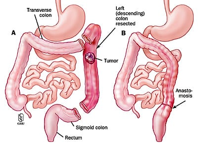 Hemicolectomie stanga