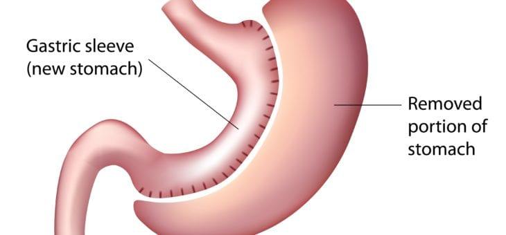 Sleeve gastric, Operatia chirurgicala de micsorare a stomacului