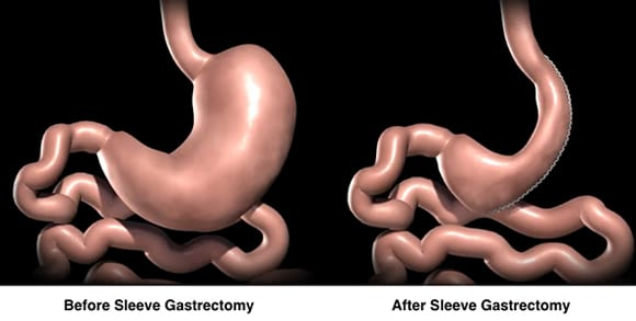 Sleeve gastric
