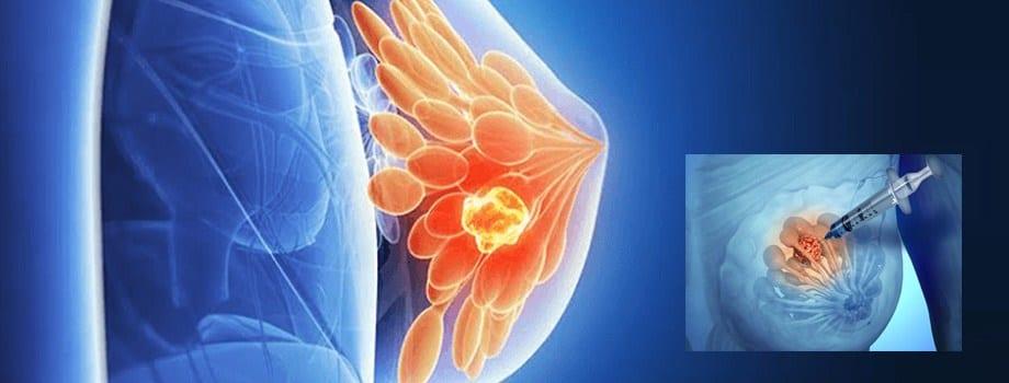 Biopsia mamara