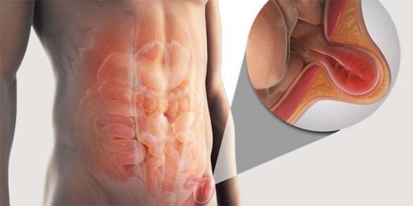 Medic pt operaea herniei abdominale