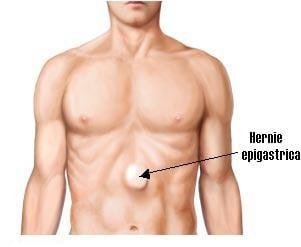 Hernia epigastrica (hernie linie alba)
