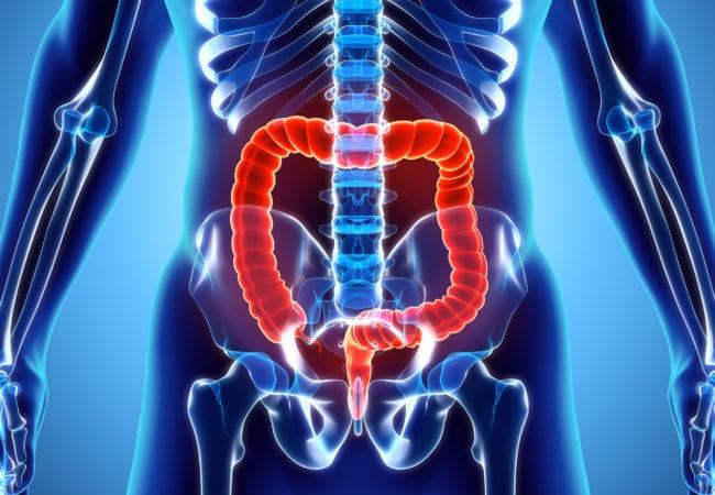 Ce trebuie stiut despre chirurgia colorectala