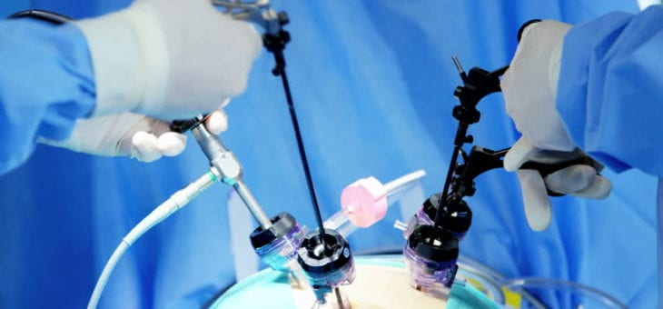 Colecistectomia laparoscopica – avantaje fata de tehnica clasica