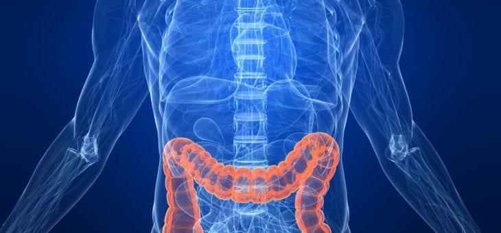 Abordul laparoscopic in cancerul colorectal