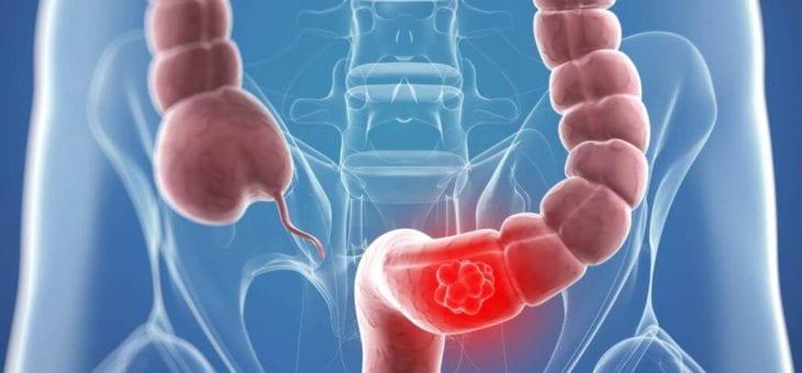 Cancerul de rect – Operatie cancer rect