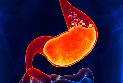 Abordul laparoscopic in boala de reflux gastroesofagian