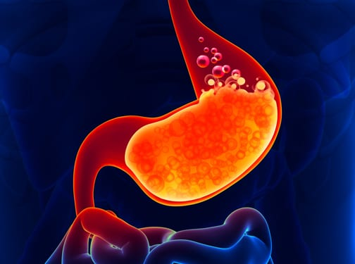 Abord laparoscopic boala de reflux
