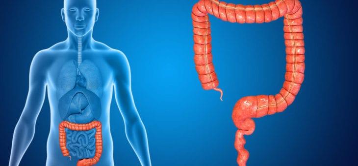 Tumorile de colon drept