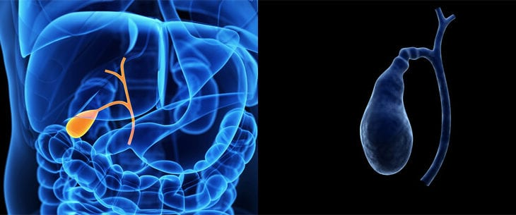 Operatie laparoscopica de colecist
