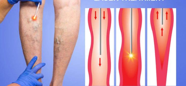 Tratament varice cu laser endovenos