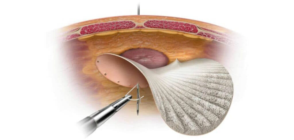 Operatie laparoscopica de eventratie