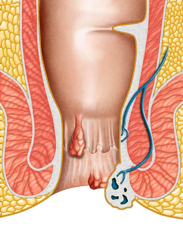 Fistula anala