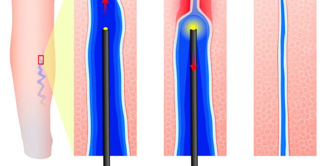 Metode performante de tratare a varicelor