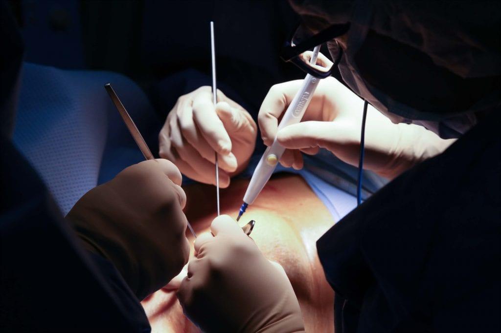 Cum se opereaza cancerul de san