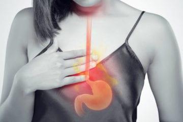 Indicațiile operatorii în boala de reflux gastroesofagian
